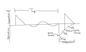APRV_Flow_Time_Waveform-1024x621